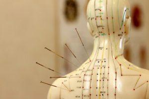 modelo-de-acupuntura