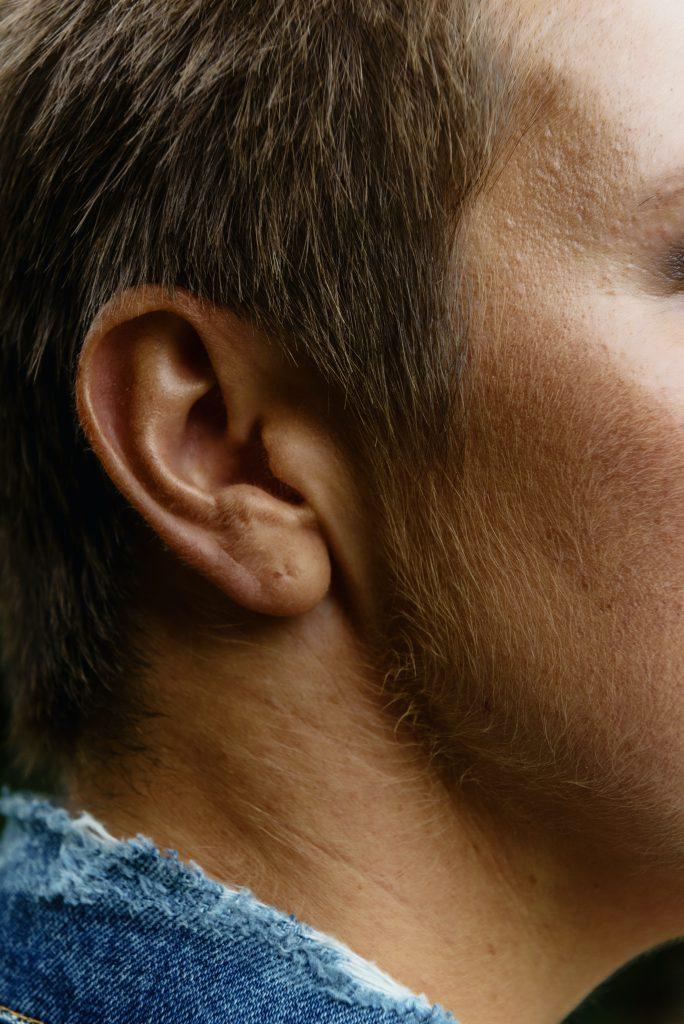 Balines en las orejas